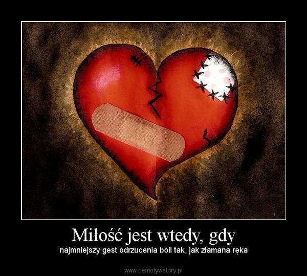Miłość jest wtedy, gdy – najmniejszy gest odrzucenia boli tak, jak złamana ręka