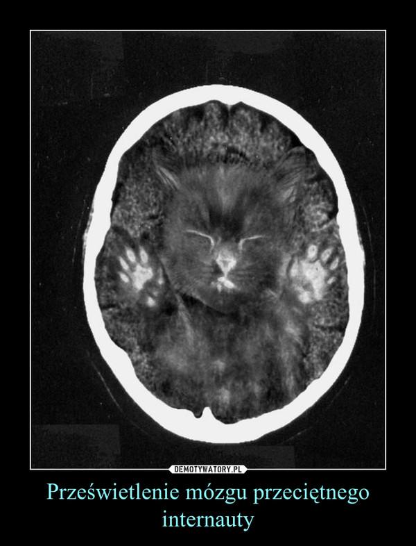 Prześwietlenie mózgu przeciętnego internauty –