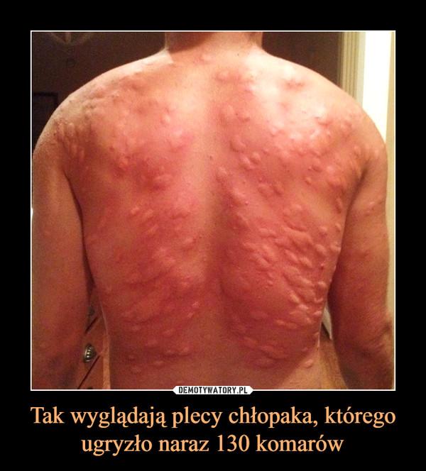 Tak wyglądają plecy chłopaka, którego ugryzło naraz 130 komarów –
