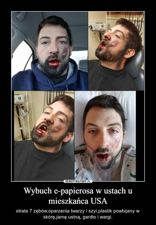 Wybuch e-papierosa w ustach u mieszkańca USA – strata 7 zębów,oparzenia twarzy i szyi,plastik powbijany w skórę,jamę ustną, gardło i wargi.