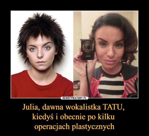 Julia, dawna wokalistka TATU, kiedyś i obecnie po kilku operacjach plastycznych –