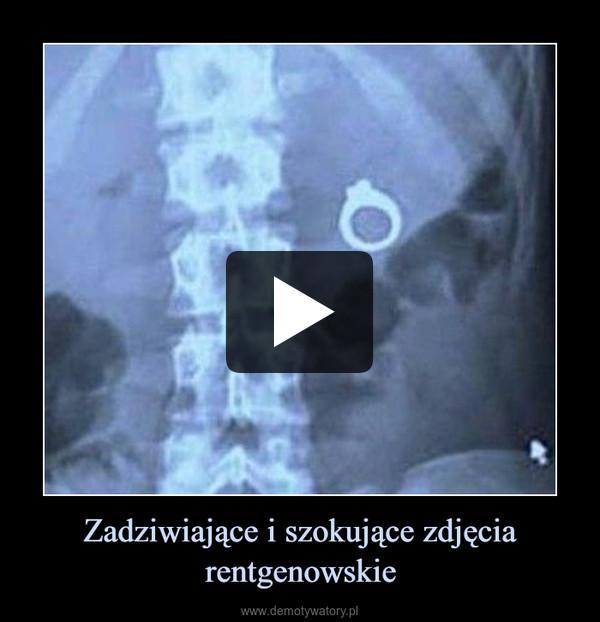 Zadziwiające i szokujące zdjęcia rentgenowskie –