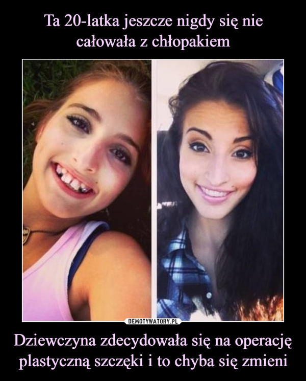 Dziewczyna zdecydowała się na operację plastyczną szczęki i to chyba się zmieni –