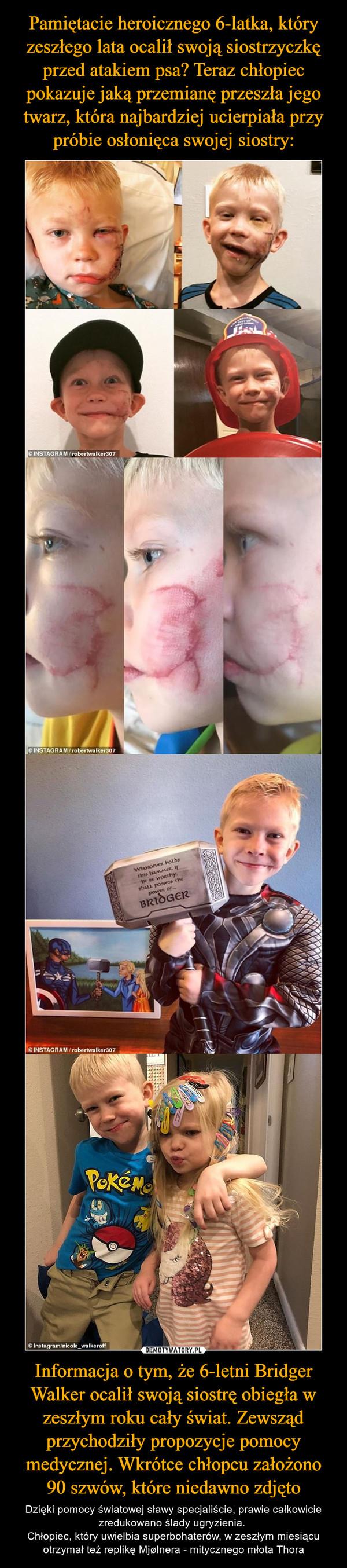 Informacja o tym, że 6-letni Bridger Walker ocalił swoją siostrę obiegła w zeszłym roku cały świat. Zewsząd przychodziły propozycje pomocy medycznej. Wkrótce chłopcu założono 90 szwów, które niedawno zdjęto – Dzięki pomocy światowej sławy specjaliście, prawie całkowicie zredukowano ślady ugryzienia. Chłopiec, który uwielbia superbohaterów, w zeszłym miesiącu otrzymał też replikę Mjølnera - mitycznego młota Thora