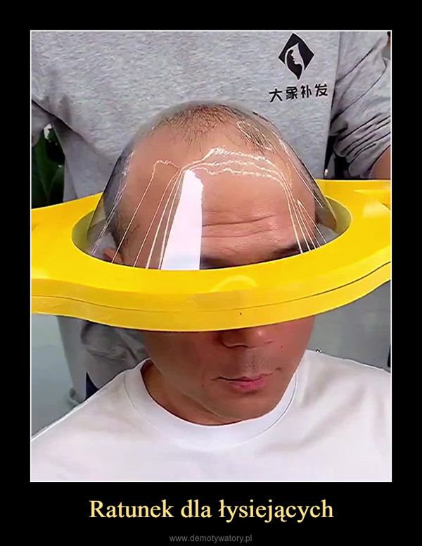 Ratunek dla łysiejących –