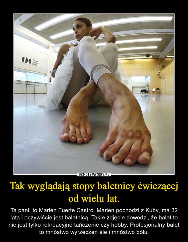Tak wyglądają stopy baletnicy ćwiczącej od wielu lat. – Ta pani, to Marlen Fuerte Castro. Marlen pochodzi z Kuby, ma 32 lata i oczywiście jest baletnicą. Takie zdjęcie dowodzi, że balet to nie jest tylko rekreacyjne tańczenie czy hobby. Profesjonalny balet to mnóstwo wyrzeczeń ale i mnóstwo bólu.