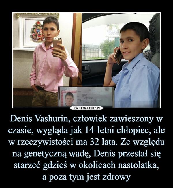 Denis Vashurin, człowiek zawieszony w czasie, wygląda jak 14-letni chłopiec, ale w rzeczywistości ma 32 lata. Ze względu na genetyczną wadę, Denis przestał się starzeć gdzieś w okolicach nastolatka,a poza tym jest zdrowy –